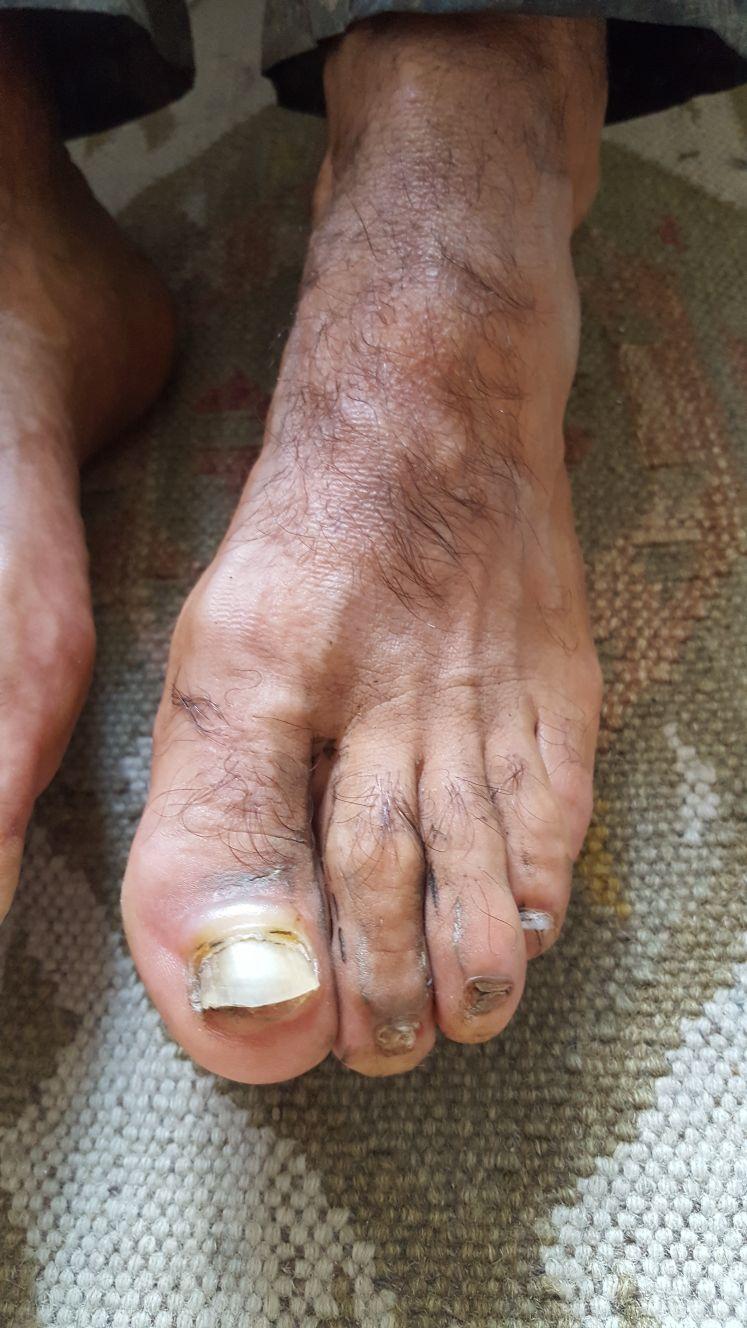 Hobbit foot